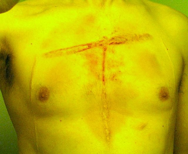 Scarification stabbing surgery beating